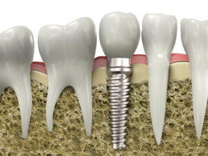 Multiple Teeth Replacement via Dental Implants