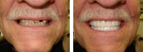 Dental Implant Smile Gallery