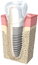 Dental Implant / Teeth in a Day (San Francisco)