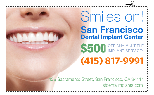 Affordable, even Cheap Dental Implants for Multiple Services