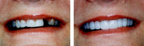 Dental Implant Smile Gallery