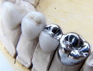 Dental implants in downtown SF