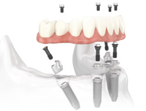 Teeth implants in San Francisco.