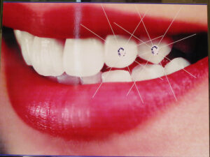 specialist is needed for dental implants.