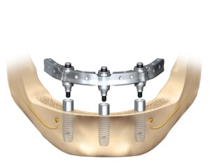 Trefoil Dental Implants in San Francisco