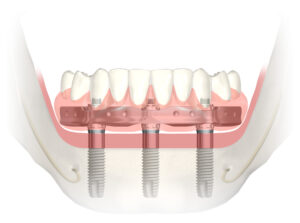 Marin County Dental Implants